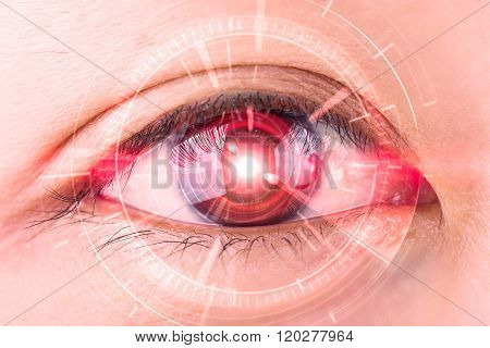 Close-up Of Woman's Red Eye The Futuristic, Contact Lens, Eye Cataract