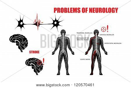 Illustration of the nervous system and neurological diseases. Brain stroke trigeminal neuralgia cervical plexus neuralgia neuralgia of the brachial plexus intercostal neuralgia and sciatic nerve.