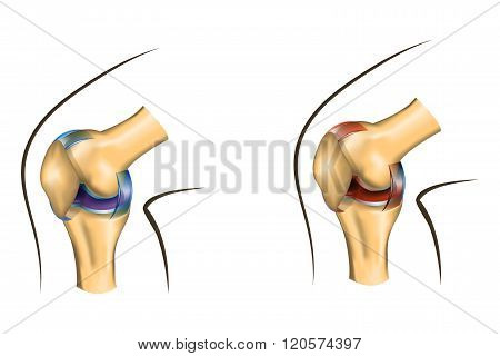 a healthy knee joint and damaged by arthritis or sprain. comparison