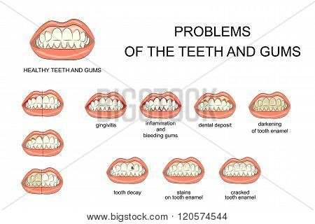 illustration of healthy gums and teeth and oral cavity diseases