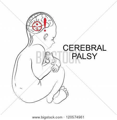 illustration of patient with cerebral palsy. Child.