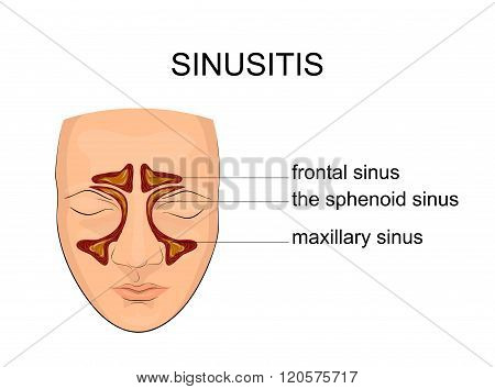 illustration of the sinuses. inflammation and edema