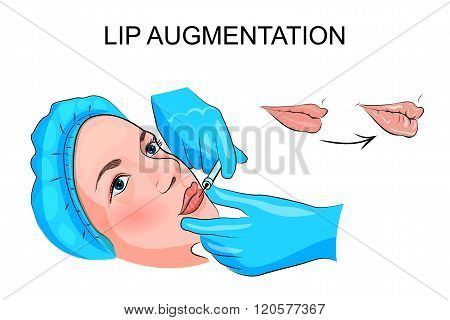 poster of illustration of fuller lips. hyaluronic acid injections