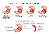 pathology of the stomach. anatomy of the stomach poster