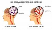 illustration of the vessels of the brain and a brief description of the causes of stroke poster