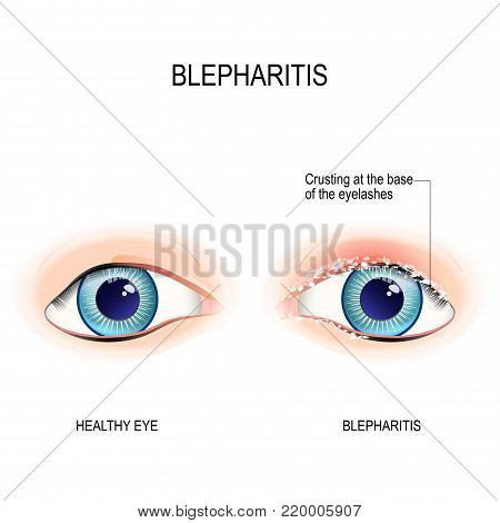 Eyes of human. Blepharitis is a inflammation of the eyelid. Crusting at the eyelid margins (base of the eyelashes) due to excessive bacterial buildup along the lid margins. Human anatomy. Vector diagram for educational, and medical use.