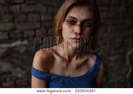 Beaten sad woman victim of domestic violence and abuse stands with bruises and wounds on her face and body. Сoncept of domestic violence, sexual violence and cruelty. Portrait.