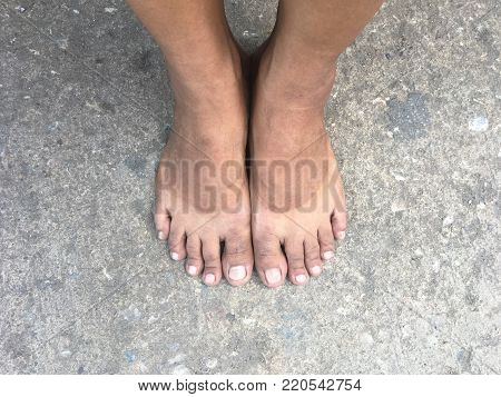 selfie bare feet standing on concrete street. Mark of sunburn on bare foot after takeing shoes off.