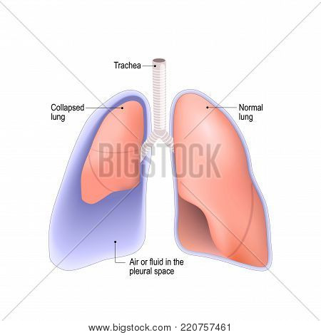Collapsed lung. abnormal collection of air (pneumothorax) or fluid (pleural effusion) or pus (empyema) in the pleural space between the lung and the chest wall. poster
