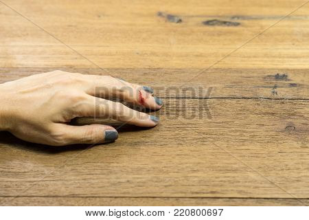 Woman hand on left with middle finger. Bleeding from fingers while cooking.