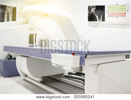 Bone Density Machine, Is In The Xray Department Of Hospital Used For Diagnose Osteoporosis Symptoms.