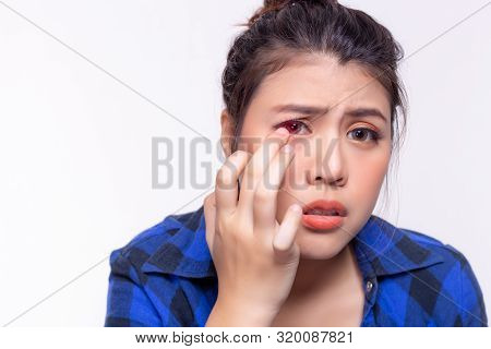 Beautiful Young Woman Get Allergic To Contact Lenses. Young Lady Gets Hurt, Painful Or Irritated Eye