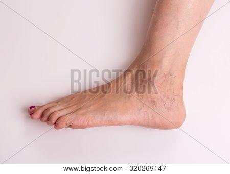 Varicose Veins Closeup. Leg Of A Girl With Varicose Veins On A Light Background. Varicose Veins On T