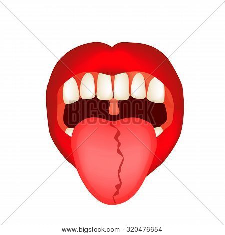 Curvature Of The Midline Of The Tongue. Definition Of A Disease According To Human Tongue. Diagnosti