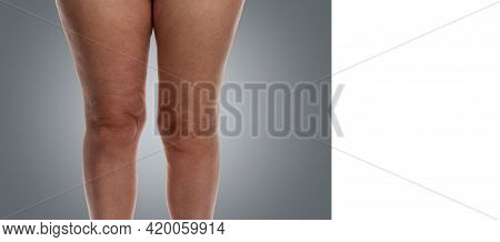 Women's Legs With A Problem Of Excess Weight And Cellulite. Front View. Close-up. Grey Background. S