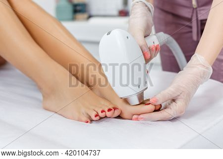 Laser Hair Removal On Toes. Cosmetologist Making Laser Epilation On Woman Legs