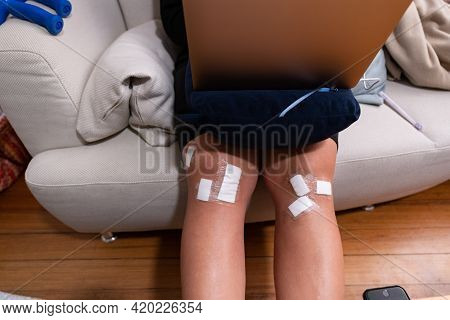 Protective Patch On Legs Of Young Woman In Convalescence. Sitting In Living Room With Device And Can