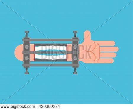 Ilizarov Apparatus For Arm. Compression-distraction Apparatus. Bone Splicing Apparatus