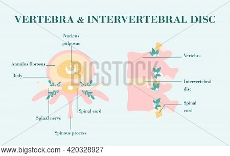 Healthy Vertebrae And Intervertebral Discs, Patient-friendly Diagram