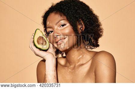 Positive African American Woman With Vitiligo Disease Holds Avocado Near Her Face. Cosmetics With Av
