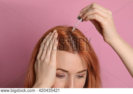 Woman Applying Oil Onto Hair On Pink Background, Closeup. Baldness Problem