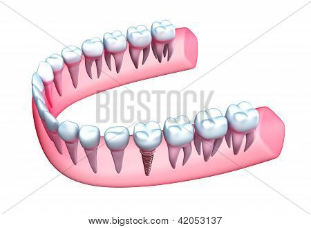 Human jaw model with teeth and implant.