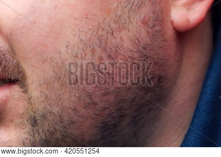 Pigmentation Spots On The Cheek Of A Young Man Among The Overgrown Stubble, Close-up