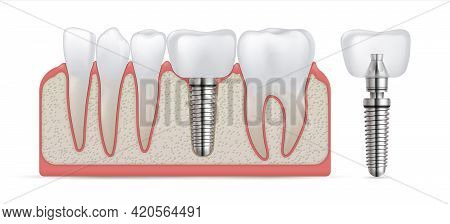 Dental Implant. Teeth Care Surgery And Crown Fixture. Tooth Replacement And Prosthesis Treatment. Im