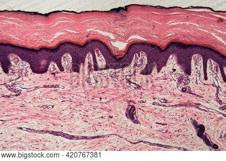 Human Skin With Sweat Glands