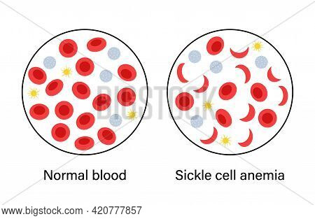 Normal Blood And Specimen With Sickle Cells Anemia. Human Blood Structure. Thrombocytes, Leukocytes