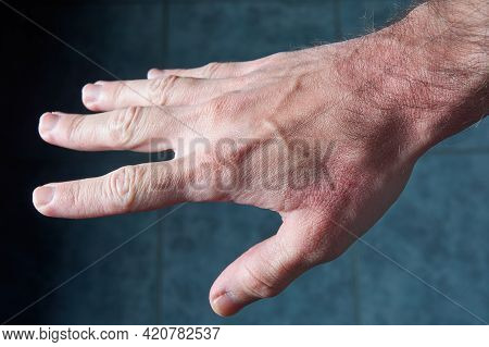 Top Side View Of Extended Male Hand Suffering Dryness With Cracked, Wounded Red Skin.