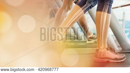 Composition of woman running on treadmill with leg bones visible and spots of light. exercise and injury concept digitally generated image.