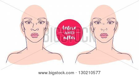 Portrait of a woman before and after with cosmetic defects. Plastic surgery and correction of deficiencies in appearance. Rhinoplasty. Hooked nose. The bridge of the nose.