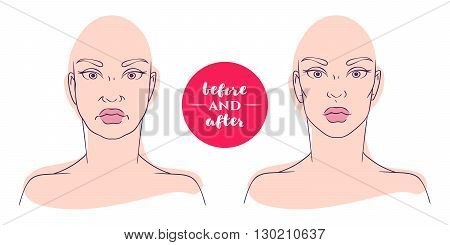 Portrait of a woman before and after with cosmetic defects. Plastic surgery and correction of deficiencies in appearance. Correction of an oval face. Sagging cheeks.
