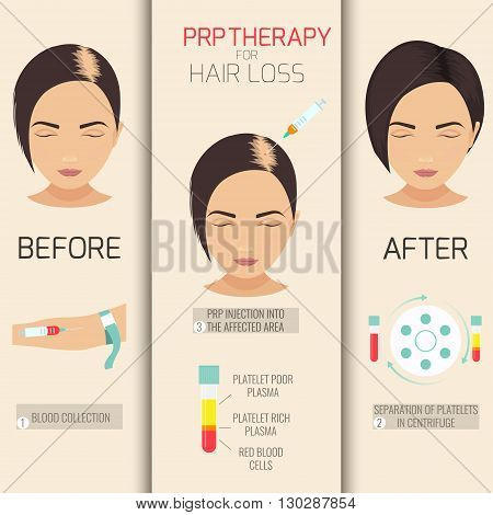 Platelet rich plasma injection. PRP therapy process. Female hair loss treatment infographics. Meso therapy. Hair growth stimulation. Vector illustration.