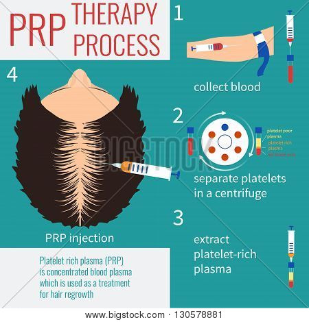 Platelet rich plasma injection. PRP therapy process. Hair loss treatment. Injection. Mesotherapy. Hair growth stimulation. Transplantation of hair.