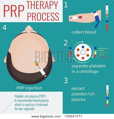 Platelet rich plasma injection. PRP therapy process. Male hair loss treatment infographics. PRP injection. PRP procedure.  Meso therapy. Hair growth stimulation. Male alopecia. Vector illustration.
