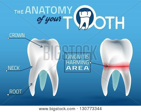 Human tooth dental infographic. Editable vector illustration. Medical image in white, pink and dark blue colors on a light blue background useful for poster, leaflet or brochure graphic design.