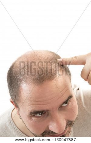 Man alopecia baldness or hair loss - Close up head treatment hand isolated poster
