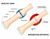 Normal Joint and Rheumatoid Arthritis. Rheumatoid Arthritis (RA) is an inflammatory type of arthritis that usually affects joint. auto immune disease. The body's immune system mistakenly attacks healthy tissue. poster