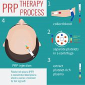 Platelet rich plasma injection. PRP therapy process. Male hair loss treatment infographics. PRP injection. PRP procedure.  Meso therapy. Hair growth stimulation. Male alopecia. Vector illustration. poster