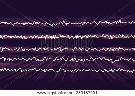 Eeg Electroencephalogram, Brain Wave In Awake State With Mental Activity, 3d Illustration