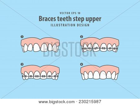 Braces Teeth Step Upper Illustration Vector On Blue Background. Dental Concept.