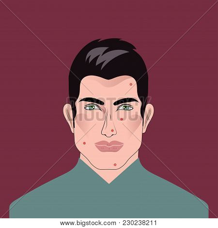 Man With Acne, Pimples. Treatment Of Problem Male Skin. Vector Illustration