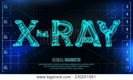 X-ray Banner Vector. Medical Background. Transparent Roentgen X-ray Text With Bones. Radiology 3d Sc