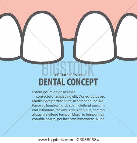 Layout Closeup Diastema Upper Teeth Illustration Vector On Blue Background. Dental Concept.