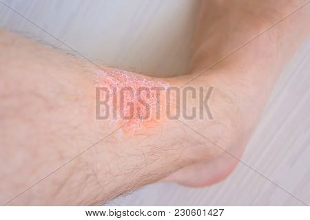 Skin Irritation Of Feet, Applied Cream On The Skin From Irritation