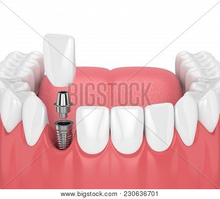 3D Render Of Jaw With Teeth And Dental Incisor Implant