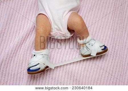 Bottom Half Of A Newborn Baby Wearing Orthopedic Shoes Connected By A Plastic Bar To Correct For A C