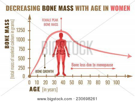 Decreasing Bone Mass With Age In Women. Detailed Infographic In Beige, Brown And Pink Colors Isolate